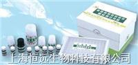 人β内啡肽ELISA试剂盒 HY20212E